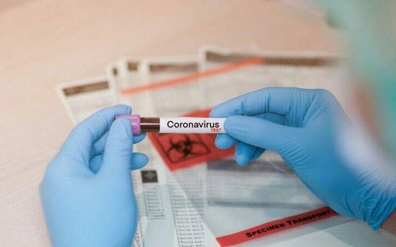 Exame para detectar Covid-19